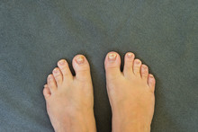 Discoloured Toenails Caused By...