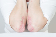 Acute Psoriasis On The Elbows Is An Autoimmune Incurable Dermatological Skin Disease. Large Red, Inflamed, Flaky Rash On The Knees. Joints Affected By Psoriatic Arthritis