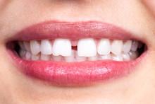 Diastema Between Tooth. Spacin...