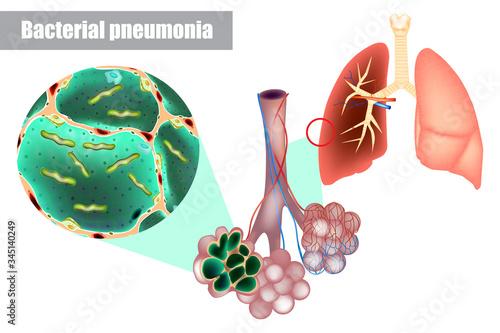 Bacteria inside alveoli of lung Canvas Print