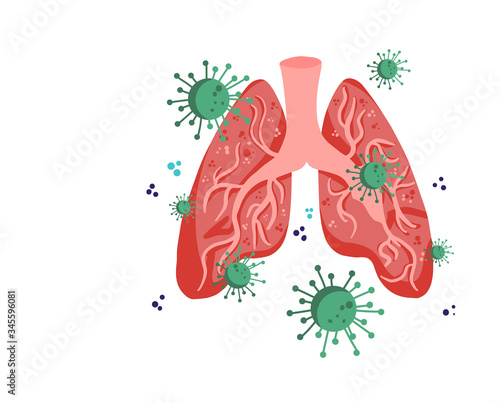 Covid-19 corona virus or 2019-ncov virus affects lung damage Fototapeta