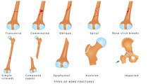 Types Of Bone Fractures. Diffe...