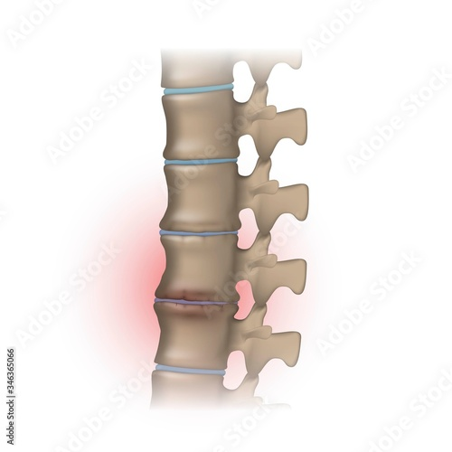 Fototapeta Human spine with degeneration of the vertebral discs, osteochondrosis and joint