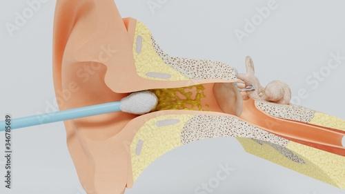 3d render ear cleansing ear stick Canvas Print