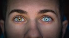 Man With Heterochromia