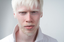 Portrait Of An Albino Man In Studio Dressed T-shirt Isolated On A White Background. Abnormal Deviations. Unusual Appearance