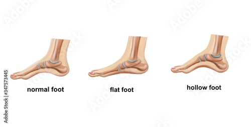 Illustration of the normal foot, flat foot and hollow foot Fototapeta