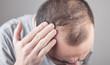 Leinwandbild Motiv Caucasian man checking his hair. Hair loss problem