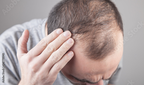 Caucasian man checking his hair. Hair loss problem