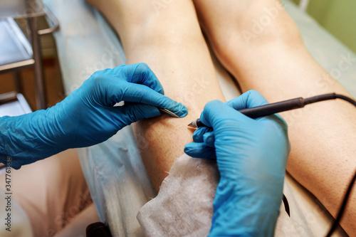 Hair removal process, electro epilation Canvas Print