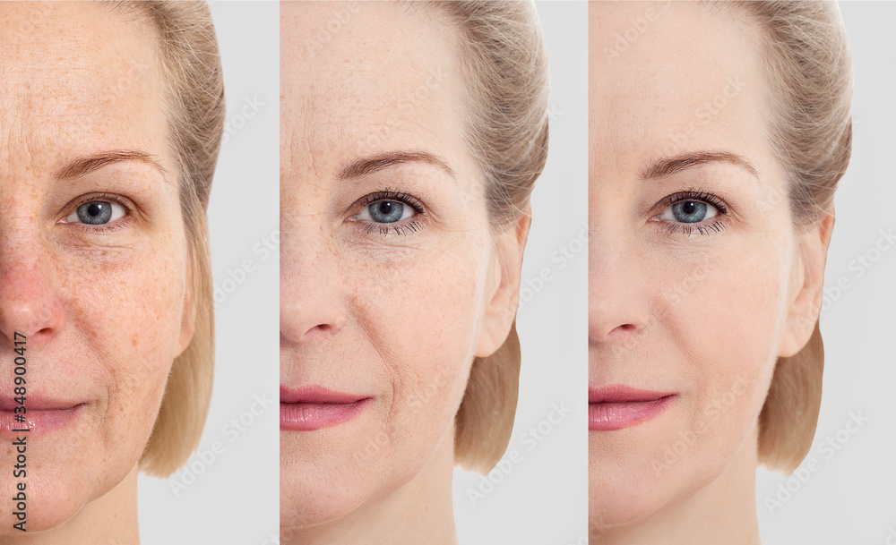 Fototapeta Face without makeup. Middle age close up woman face before after cosmetic. Skin care for wrinkled face. Before-after anti-aging facelift treatment. Facial skincare and contouring.