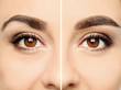 canvas print picture Woman before and after eyebrow correction, closeup