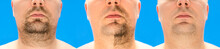 Before And After Shaving. Collage Of Young Man With Unformed, Untrimmed, Overgrown Stubble, Hair On His Face And Neck, Half And With Completely Shaved Beard. Isolated On Blue Background
