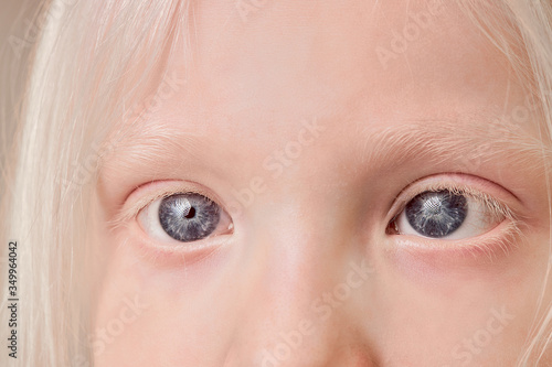 Fototapeta close-up photo of albino child eyes, little girl with unusual eyes, hair, eyebrows and lashes color
