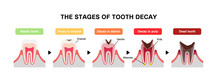 The Stages Of Tooth Decay / Fl...