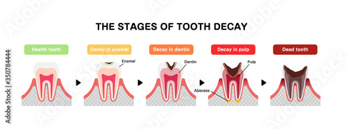 The stages of tooth decay / flat vector illustration Wallpaper Mural
