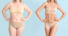 Woman Before And After Weight Loss On Color Background