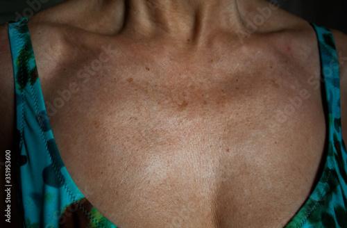 Photo Piel del escote con arrugas y manchas por el foto envejecimiento prematuro de la