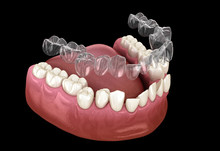 Invisalign Braces Or Invisible Retainer Make Bite Correction. Medically Accurate 3D Illustration