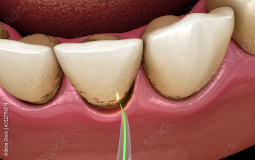 Obraz Laser removes a thin layer of infected skin, teeth cleaning. Medically accurate tooth 3D illustration - fototapety do salonu