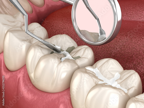 Obraz Molar tooth fissure restoration with filling. Medically accurate tooth 3D illustration. - fototapety do salonu