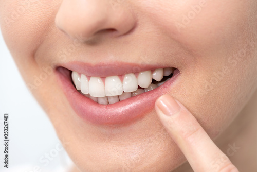 Teeth whitening, perfect smile #353267481