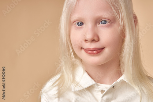 Obraz na plátne adorable albino girl 7-9 years old posing at camera isolated