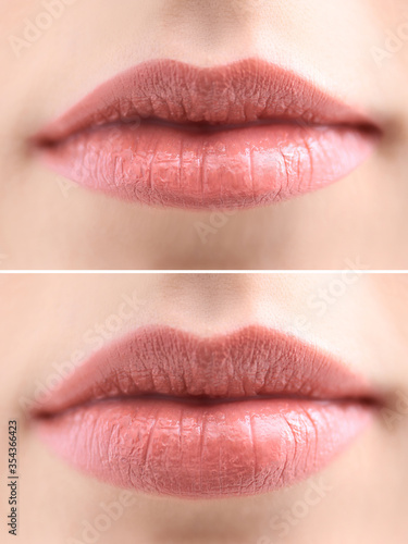 Foto Woman before and after lip correction procedure, closeup