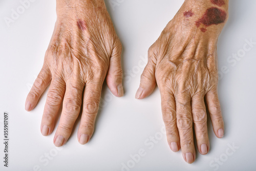 Fototapeta Old woman's deform hands, Skin hemorrhage bruise wound and senile purpura, Finger pain and stiffness from arthritis in senior people, Elderly healthcare concept
