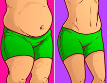 Belly Fat, Before-after. Vecto...