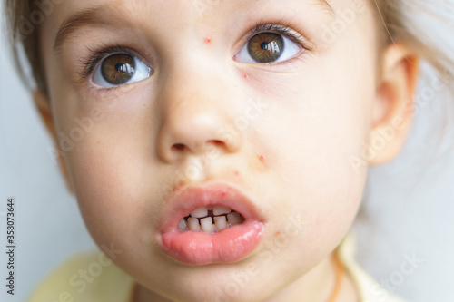 The face of a little girl with skin rashes is a close-up view Fototapeta