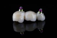 Dental Bridge-prosthesis For T...
