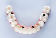 Ceramic Dental Prosthesis Of T...