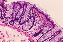 Mucosal Lining Of Normal Colon. Microscopic View.