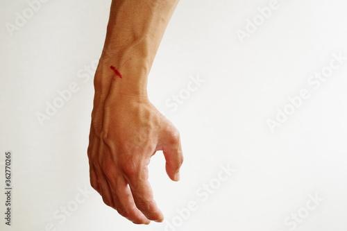 Obraz na plátně ケガで出血した腕