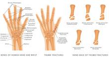 Thumb Fractures. Human Hand Bo...