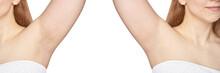 Girl Underarm. White Woman Arm...