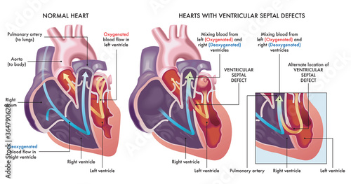 Medical illustration that compares a normal heart with hearts afflicted by ventricular septal defects, an abnormal opening (hole) in the heart, with annotations Canvas Print