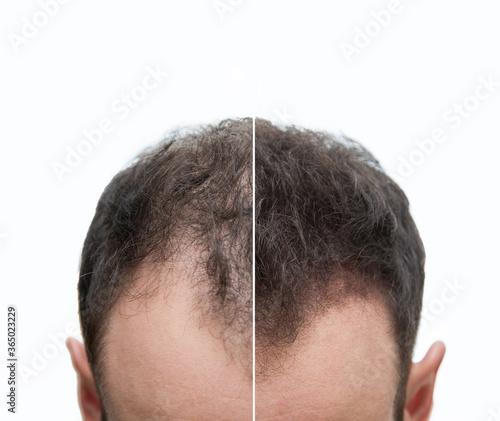 Halbglatze und Geheimratsecken eines Mannes mit Haarausfall - Vorher Nachher - Haarwachstum - Effekt  #365023229