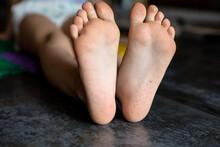 Children's Feet After Massage ...