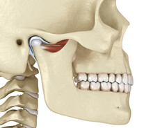 TMJ: The Temporomandibular Joi...