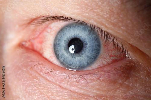 Fotografie, Obraz Irritated left blue male eye full with red capillar net