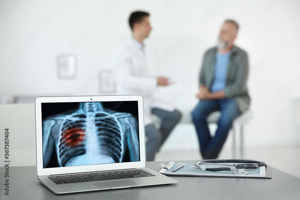 Fototapeta Doctor consulting man in clinic, blurred view. Focus on laptop displaying x-ray of patient with lung cancer