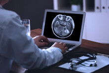 Doctor Examining X-ray Of Patient With Brain Cancer On Laptop In Clinic, Closeup