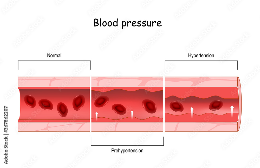 Fototapeta Hypertension. high blood pressure. Cross section of blood vessel with red blood cells
