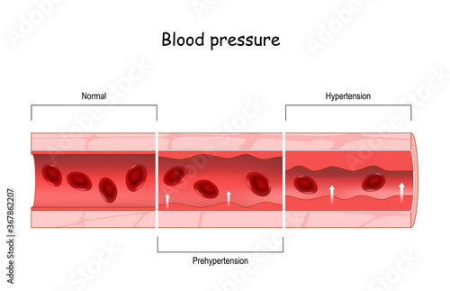 Fototapeta Hypertension. high blood pressure. Cross section of blood vessel with red blood cells obraz