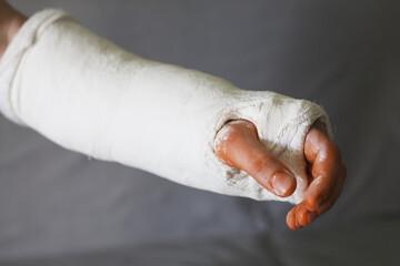 złamana ręka w opatrunku gipsowym