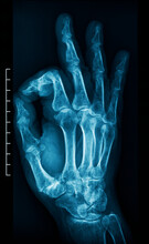 X-ray Of An Human Hand Doing The OK Sign With The Fingers