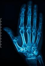 X-ray Of An Human Hand