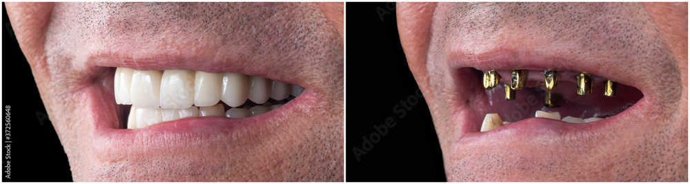 Fototapeta before and after pictures of dental implants and press cerami crowns